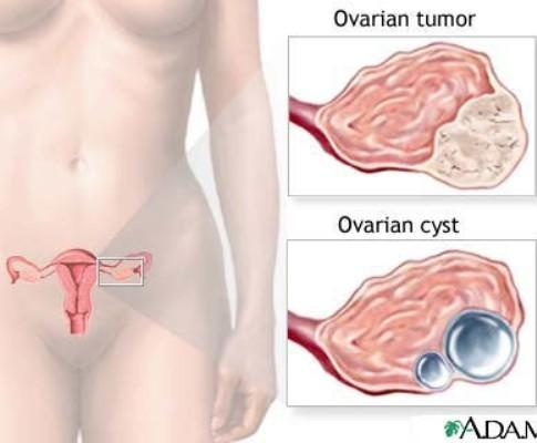 Cancro Ovários