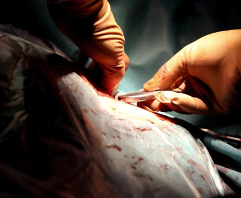 Colocação de pacemaker (JOSE COELHO / LUSA)