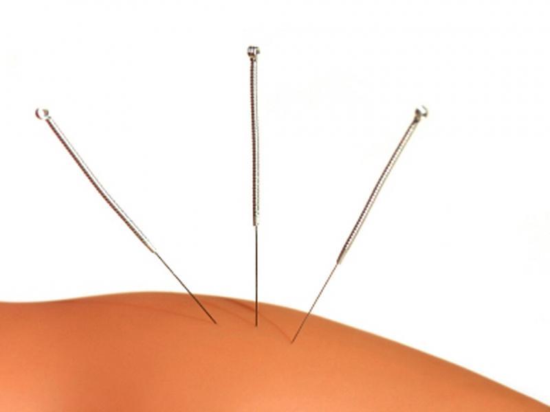 Acupunctura (arquivo)
