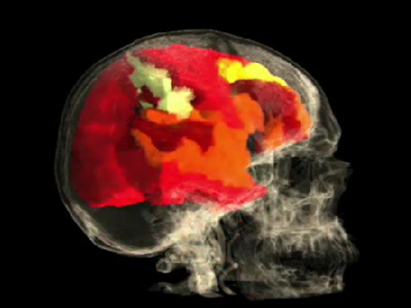 Cérebro da mulher é filmado durante orgasmo - foto TheVisualMD.com