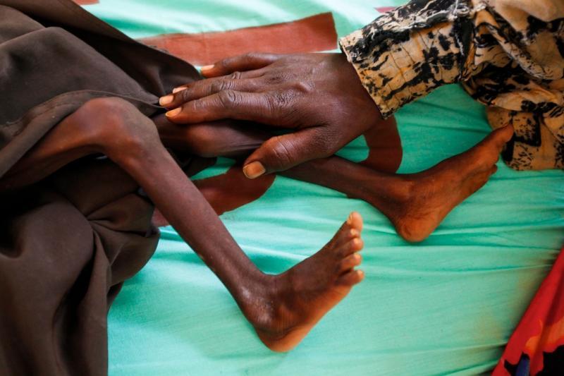Best of Agosto 2011: Ataque à fome em África (EPA/DAI KUROKAWA)