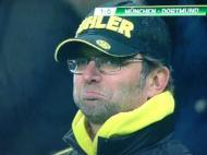 A expressão de Jurgen Klopp após o golaço de Robben