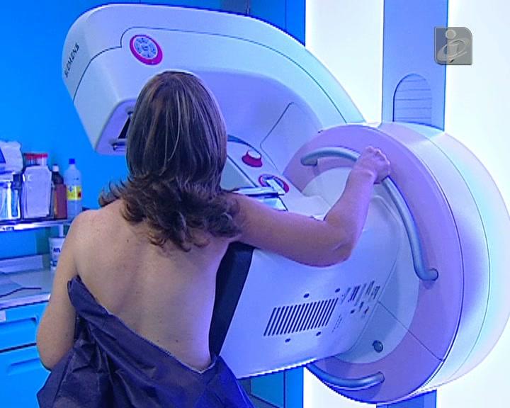 Cancro da mama: mais frequentes são os tumores invasivos