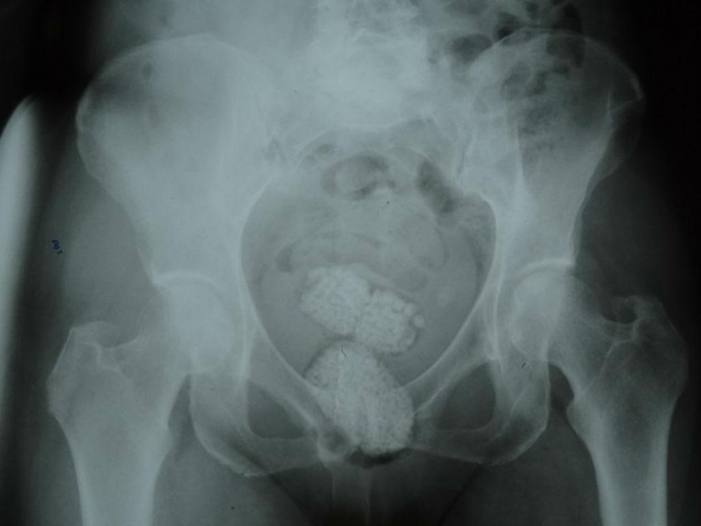Diamantes identificados em radiografia (Divulgação/Polícia Federal)