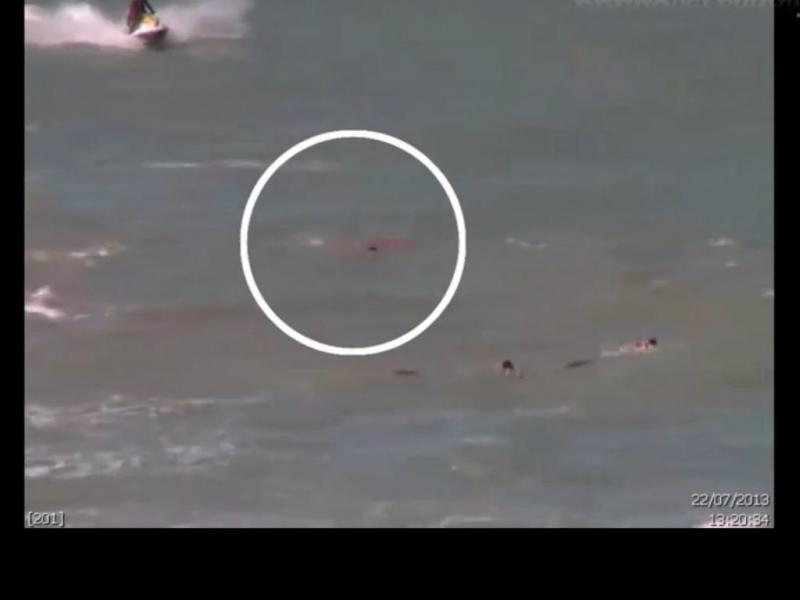 Jovem atacada por tubarão numa praia do Recife