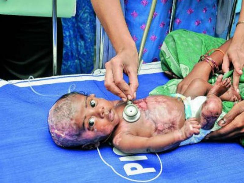 Rahul. o bebé que se incendeia (DR)