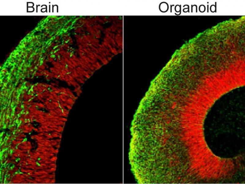 Mini cérebro humano criado em laboratório (Lusa)
