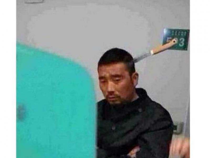 Chinês aguarda nas urgências com faca espetada na cabeça (Foto reprodução China.ong.cn)