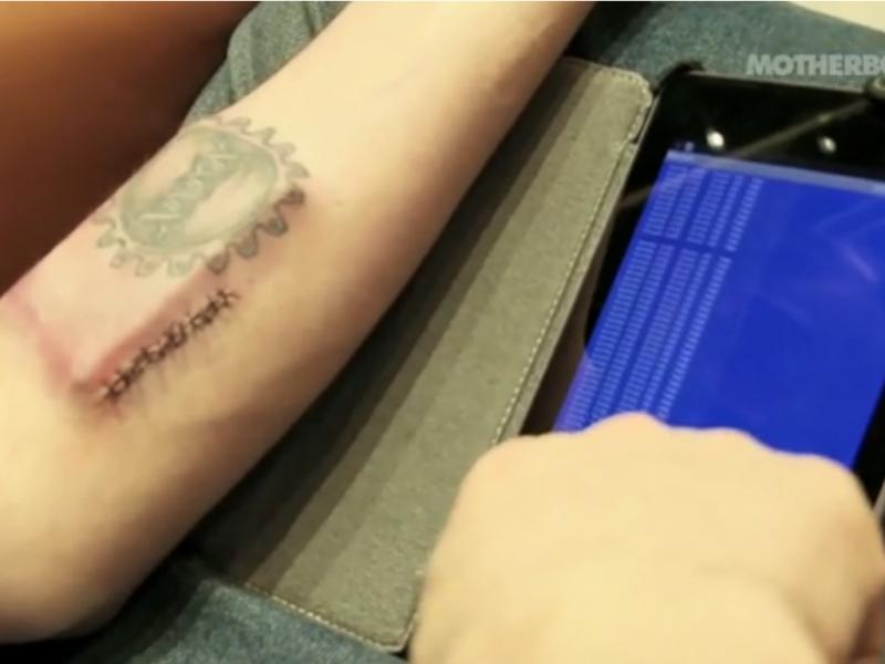 Tim Cannon implanta chip por baixo da pele (Reprodução / Youtube / MotherboardTV)