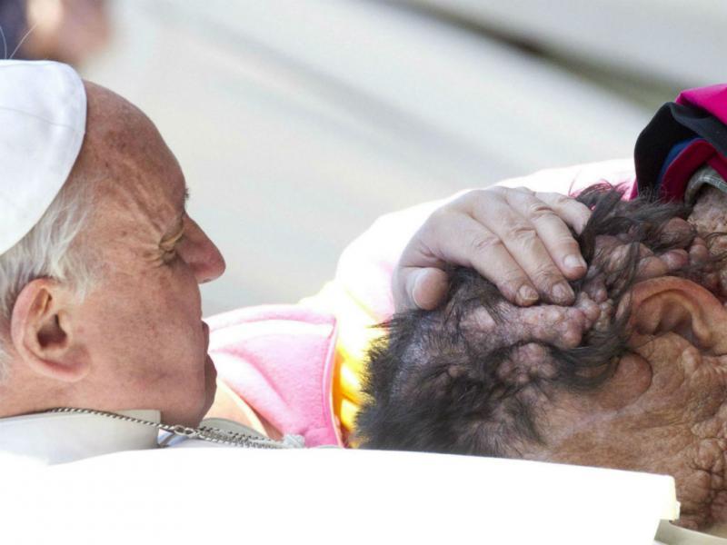 Papa abraça homem desfigurado (EPA/CLAUDIO PERI)