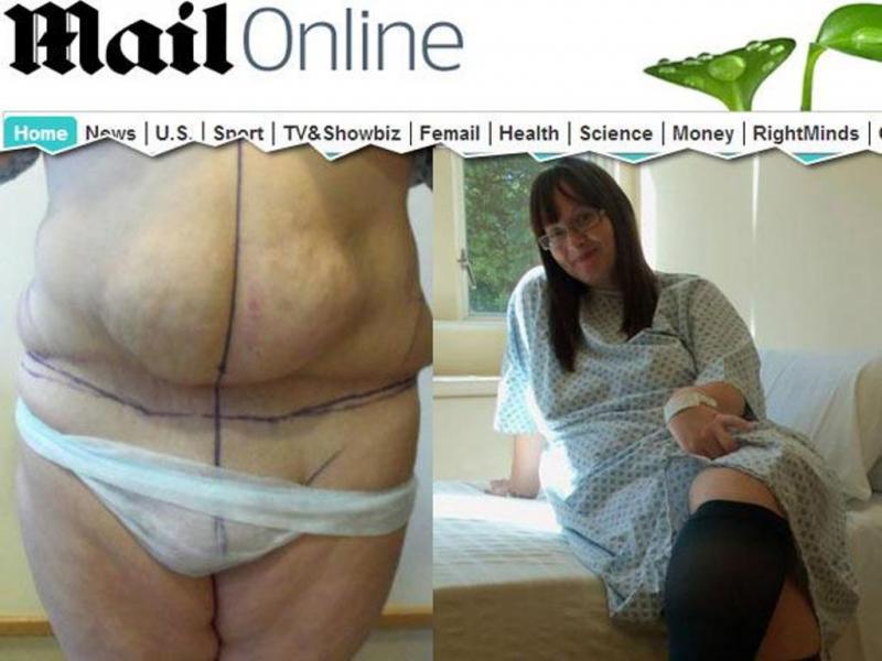 Britânica faz cirurgia ao abdómen e acorda com «pénis» (Reprodução Daily Mail)