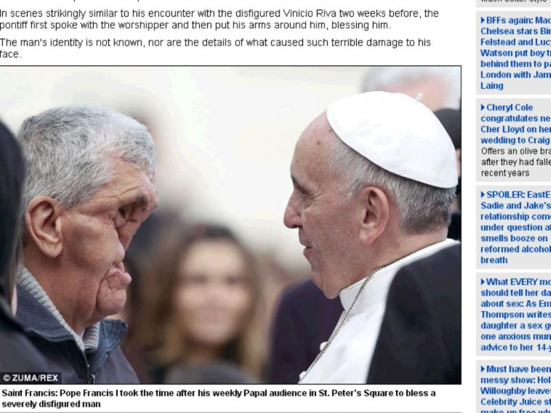 Papa abraça homem desfigurado