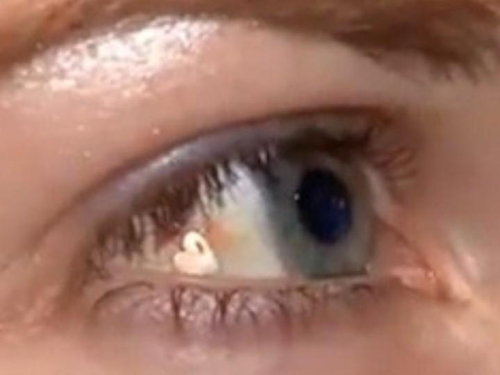 Jovem implanta joia num olho para «ser diferente» (Reprodução YouTube/Star News)