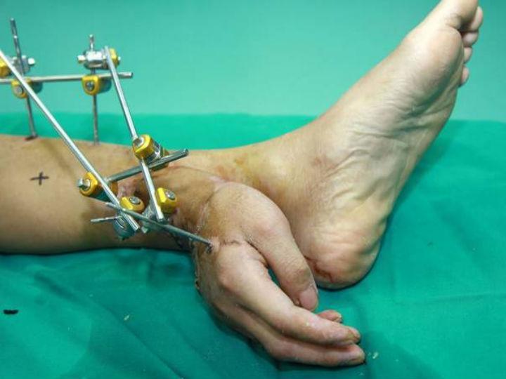 Médicos salvam mão cortada e ligam-na ao tornozelo