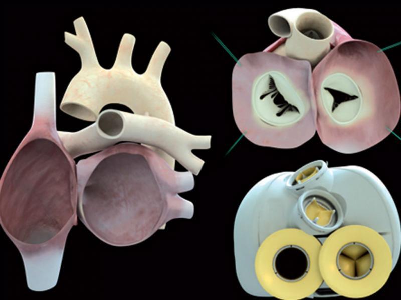 Coração artificial colocado em França (EPA/LUSA)