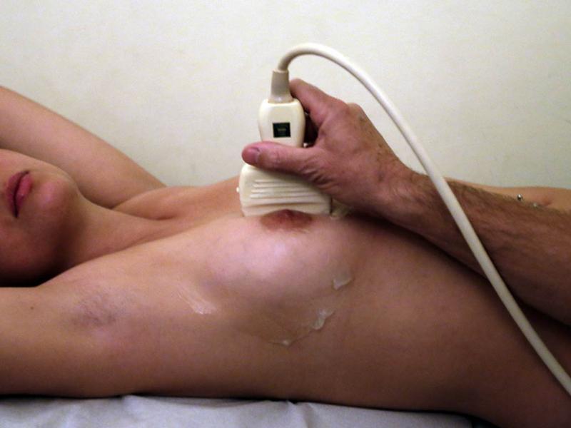Mamografia (Reuters)