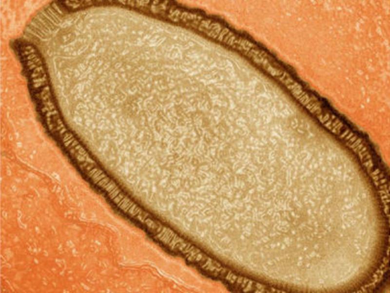 Novo Vírus descoberto (reprodução de csmonitor)