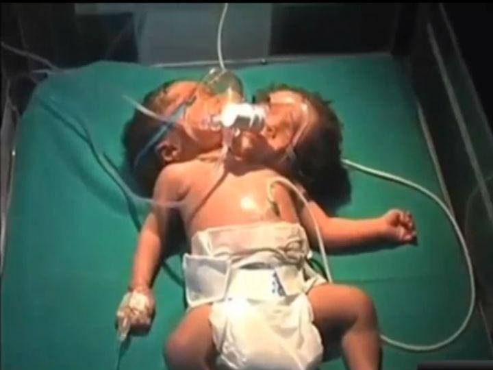 Bebé nasce com um corpo e duas cabeças