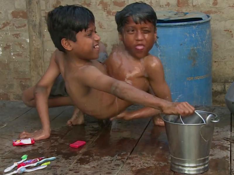Gémeos siameses Shivanat e Shivram