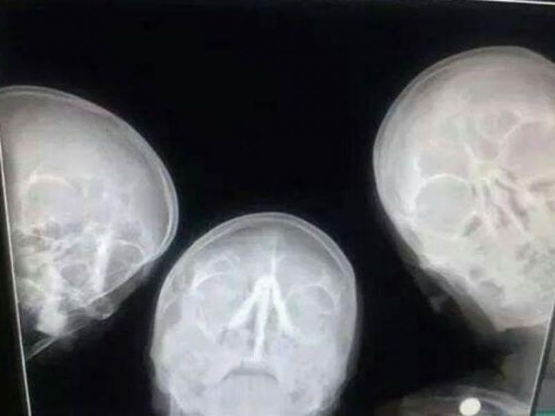 Veja o que acontece quando três radiologistas resolvem tirar uma selfie (Reprodução/Reddit(FunStorm1)
