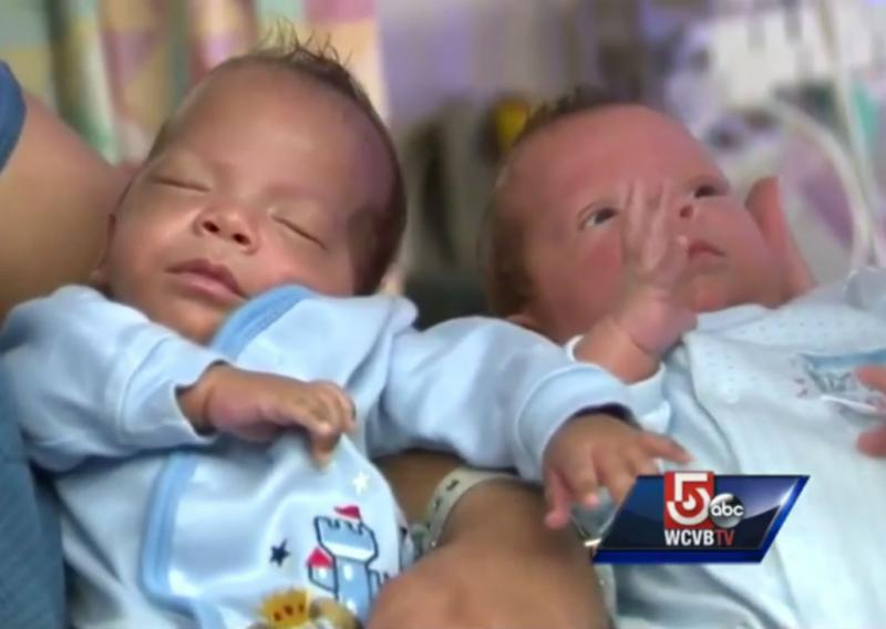 Gémeos nascem com 24 dias de diferença (Reprodução YouTube)