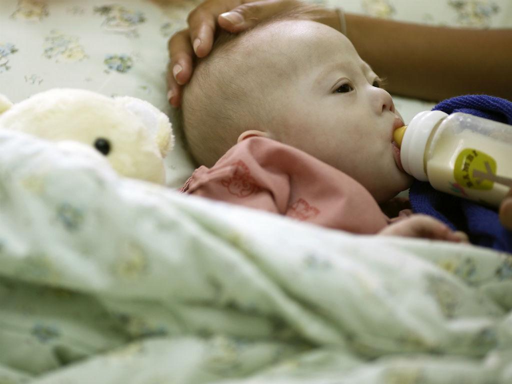 Gammy, o bebé com síndroma de Down rejeitado pelos pais (REUTERS)