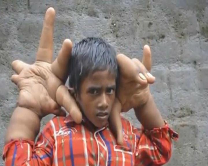 As mãos de Kaleem, de oito anos, pesam mais de 12 quilos (Reprodução/ YouTube)
