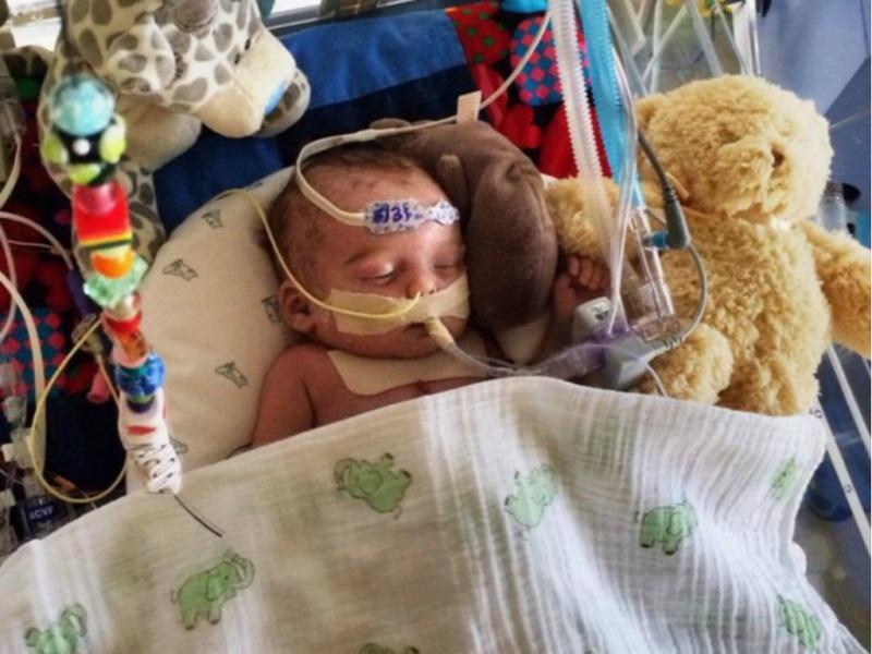 Facebook rejeita foto de bebé doente «demasiado gráfica»