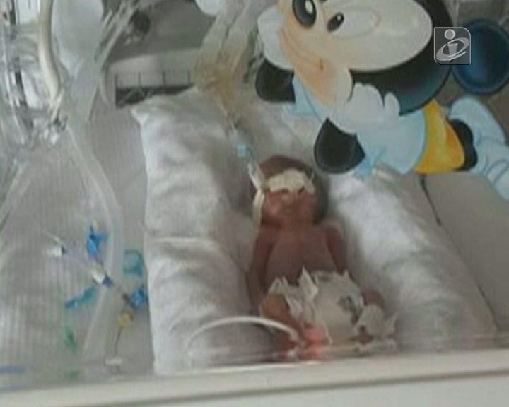 Bebé prematura