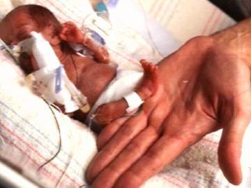 Bebé nasce com seis meses nos EUA
