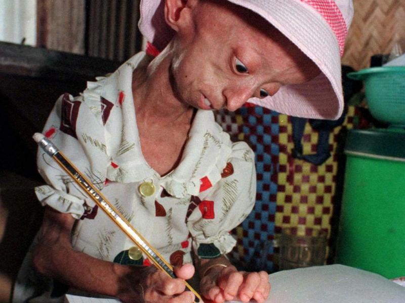 Doente de  progeria (REUTERS)