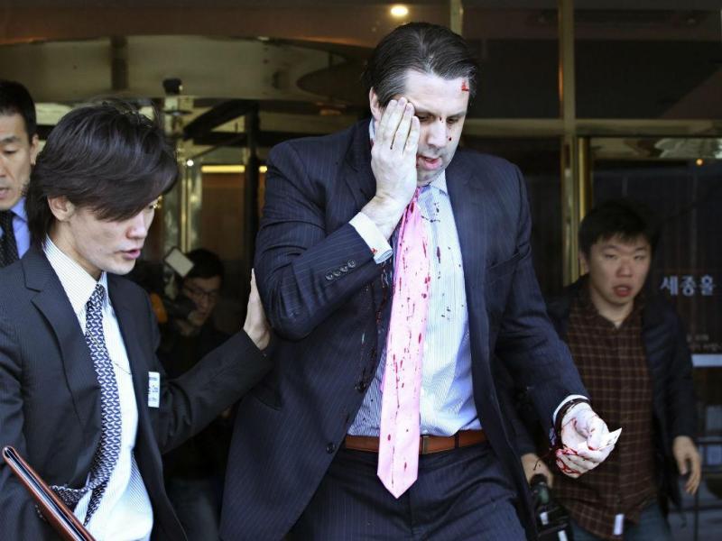 Mark Lippert foi ferido na Coreia do Sul [Lusa]