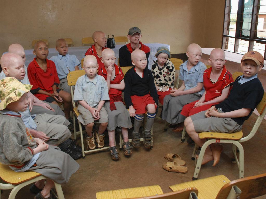 Albinos na Tanzânia [Foto: Reuters]