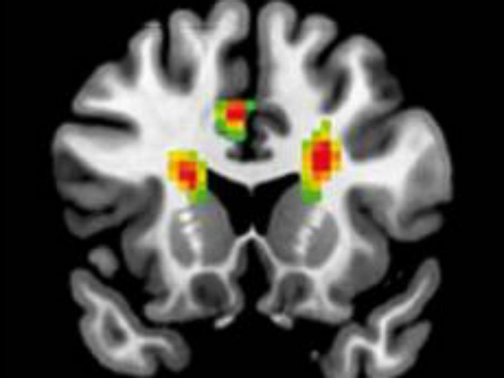 A ciência do amor (Frontiers in Human Neuroscience)