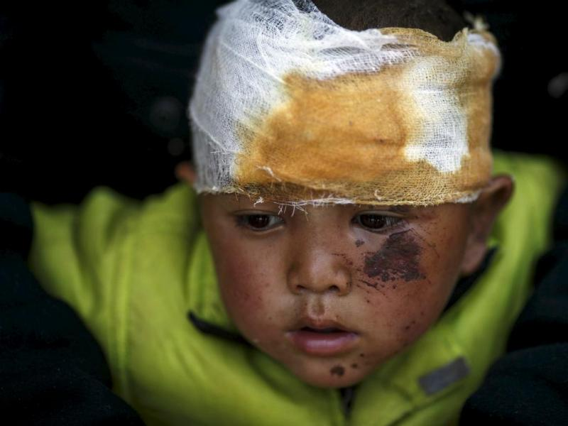 Criança de quatro anos ferida no sismo no Nepal (REUTERS/Athit Perawongmetha)
