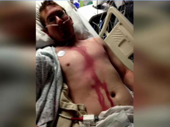 Homem sobrevive a relâmpago (Foto Youtube)