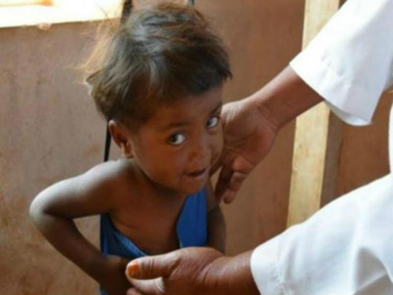 criança subnutrida (Foto Getty)