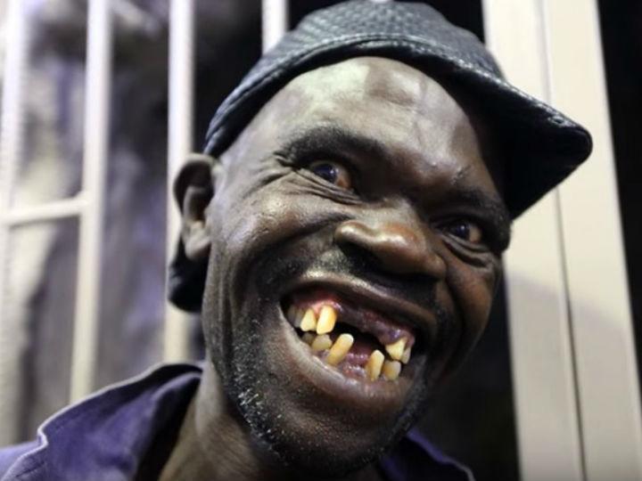 Mison Sere eleito o homem mais feio do Zimbabué
