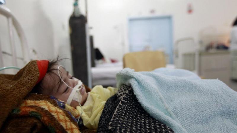 Criança num hospital do Iémen