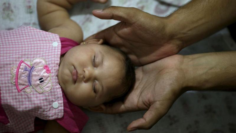 Maria Geovana nasceu com microcefalia. Recife, Brasil