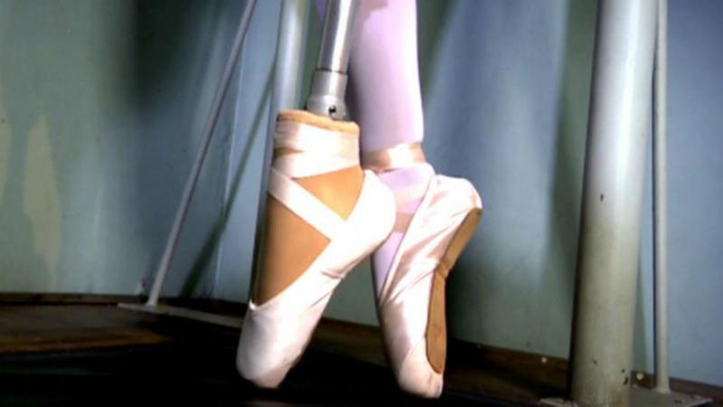 Bailarina amputada volta a dançar graças a prótese inovadora