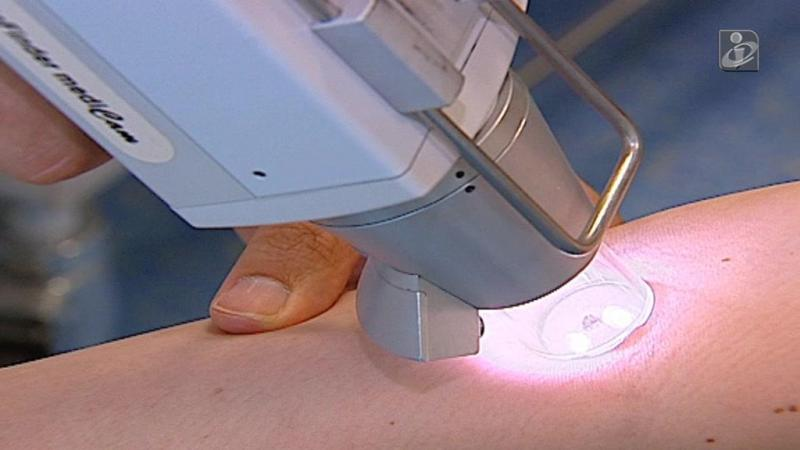 Cancro da pele continua a aumentar em Portugal
