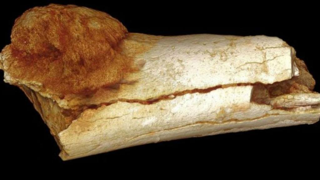 Cancro mais antigo do mundo