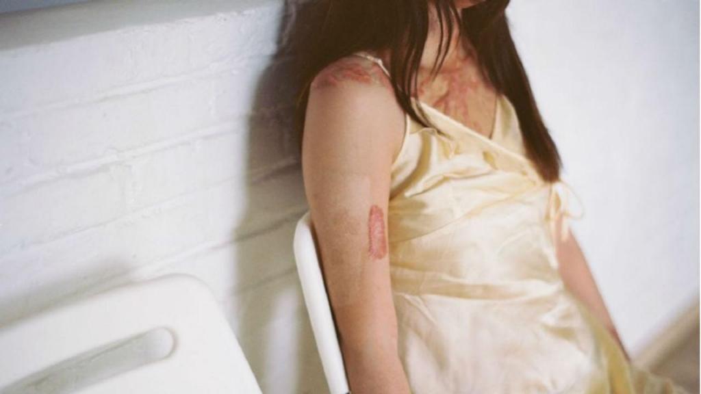 Jovem queimada depois de ter rejeitado um rapaz