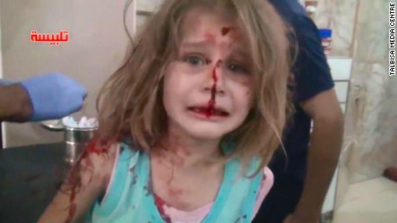 Menina ferida após ataque aéreo na Síria