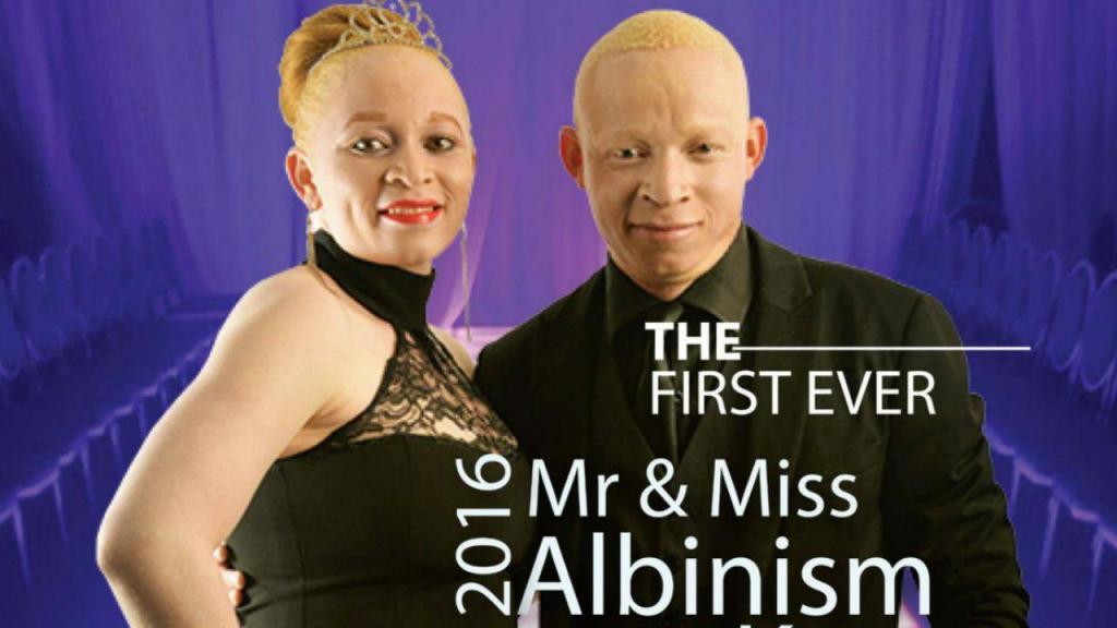 Mr e Miss Albinos 2016