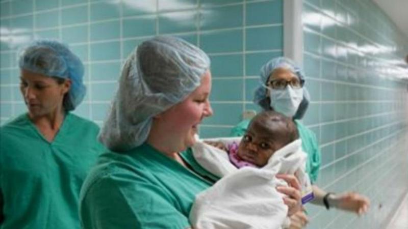 Menina com quatro pernas e duas colunas sobrevive a cirurgia de risco