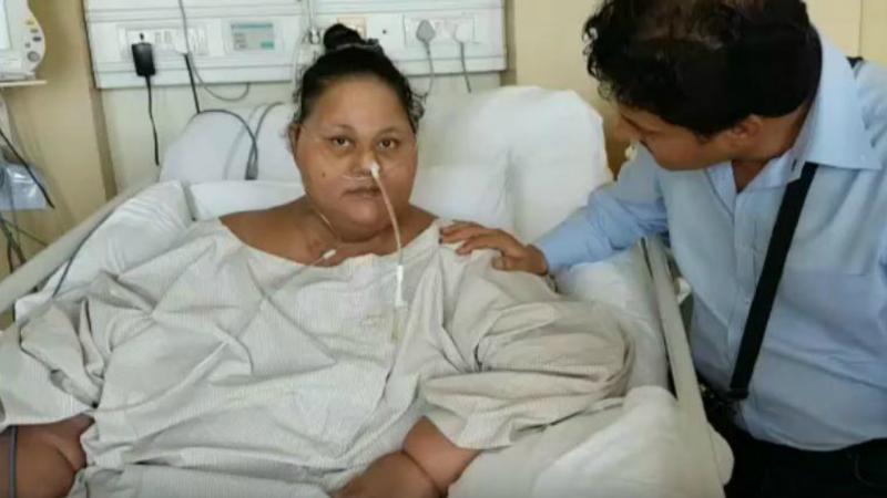 Mulher mais pesada do mundo perdeu 250 kg em dois meses
