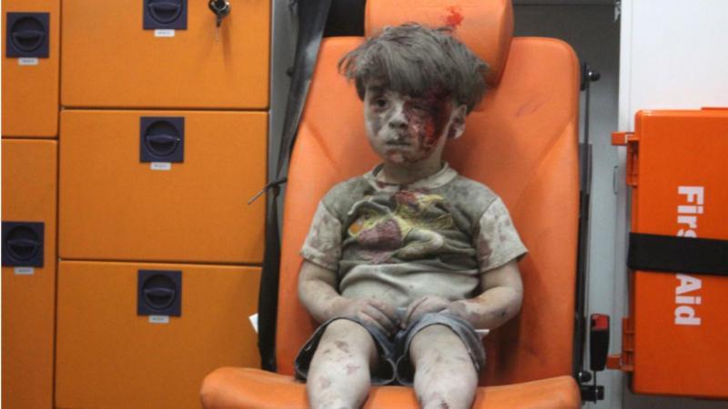 Veja como está Omran, a criança que se tornou um símbolo da guerra civil síria