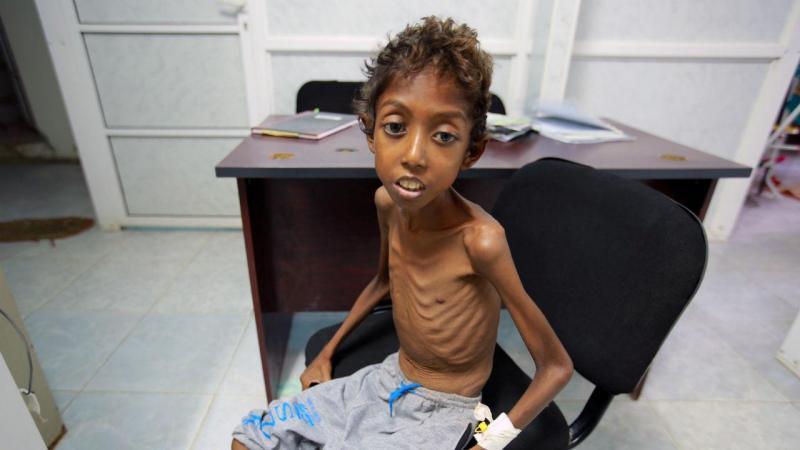 Símbolos da fome no Iémen